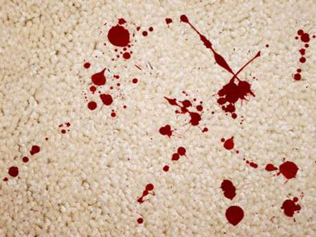 Removing blod stains from Carpet